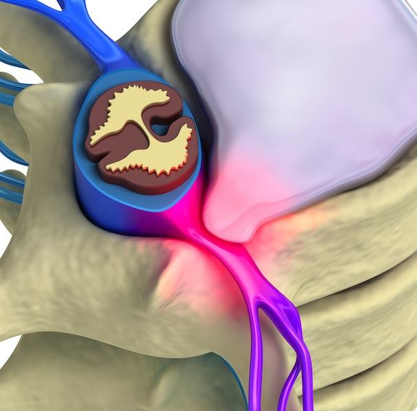 ¿como me puede ayudar la quiropráctica con mi hernia discal?
