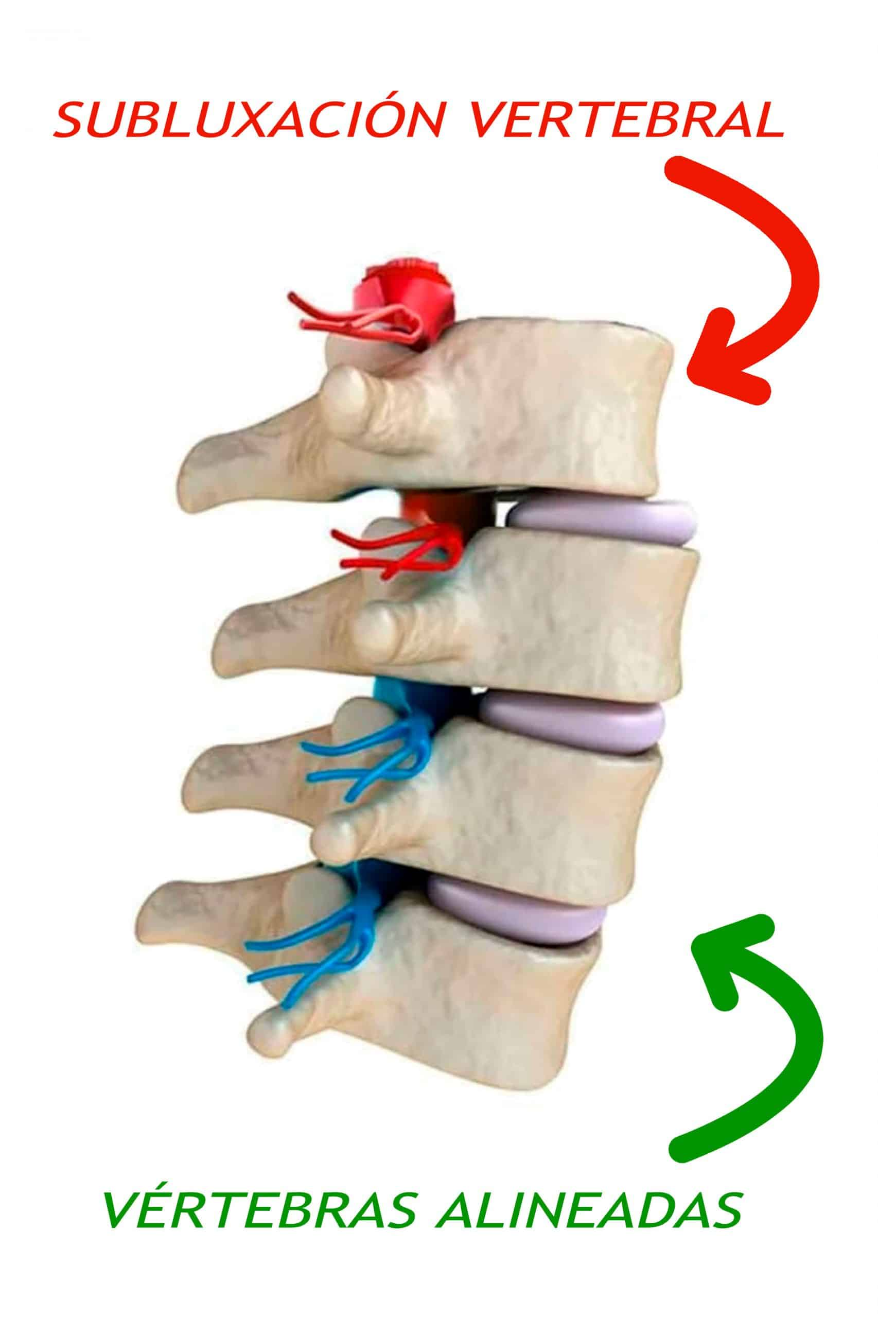 Quiropráctica subluxación vertebral